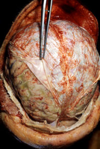 Dura mater over brain